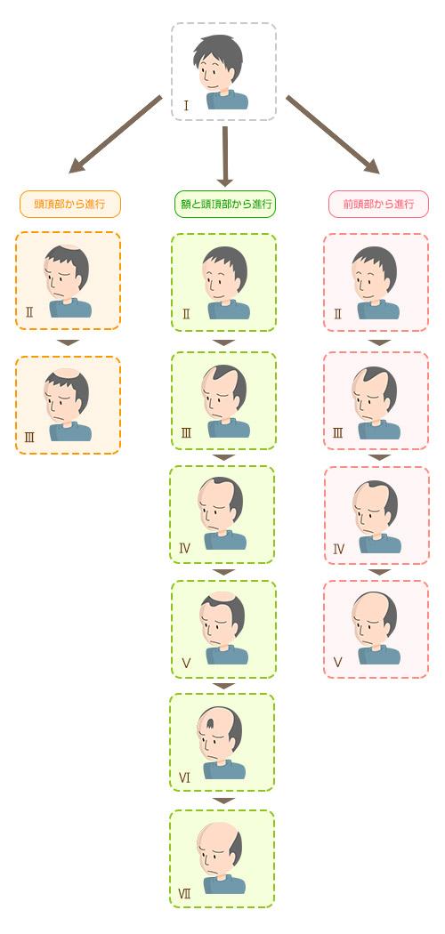 男性の薄毛の進行パターンイメージ